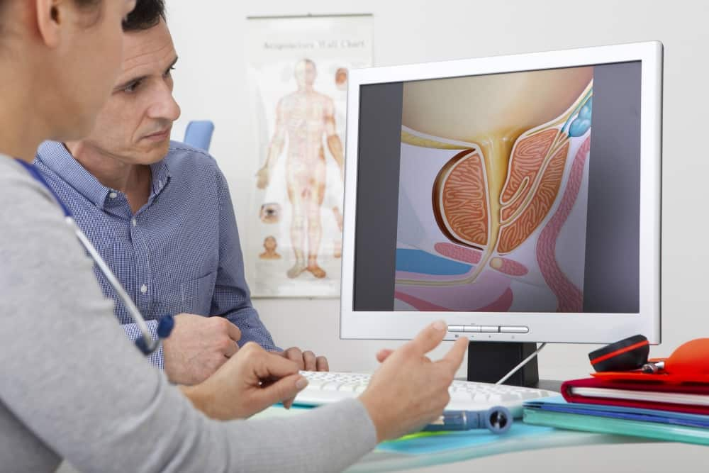 Models. On screen, drawing illustrating the prostate (without pathology).