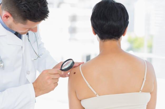 dermatologo-che-esamina-il-melanoma-sulla-donna_13339-171781