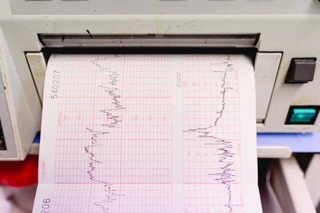 grafico-con-elettrocardiogramma-di-una-donna-incinta-durante-un-esame-ospedaliero_47726-4097