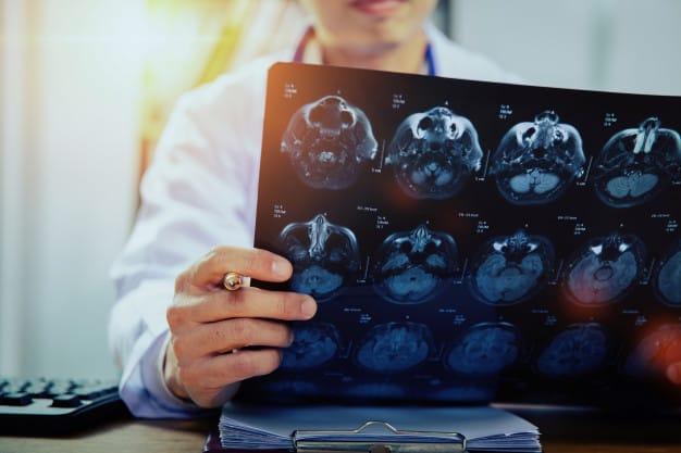 medico-con-risonanza-magnetica-del-cervello-xray_43569-133