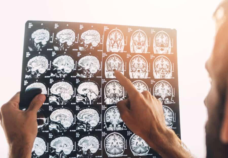 img-Neurologia